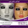 دستورات قبل و بعد از جراحی بینی