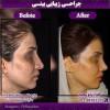 نتیجه جراحی بینی