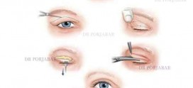 جراحی زیبایی پلک