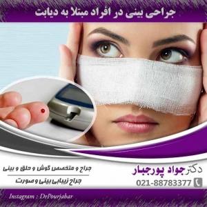جراحی بینی در افراد مبتلا به دیابت