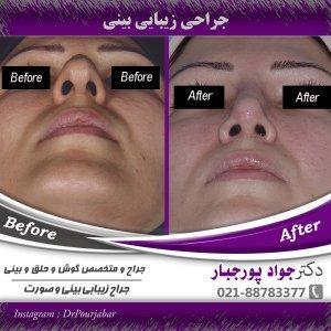 اقدامات و آمادگی های قبل از جراحی بینی