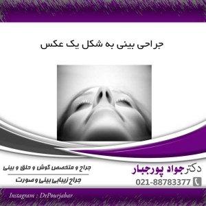 جراحی بینی به شکل یک عکس