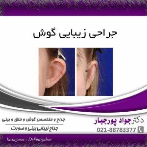 عمل جراحی زیبایی گوش