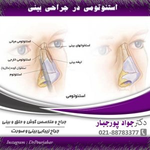 استئوتومی در جراحی بینی