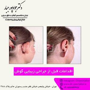 اقدامات قبل از جراحی زیبایی گوش
