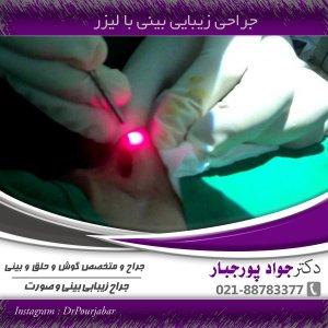 جراحی زیبایی بینی با لیزر