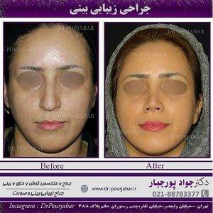 دکتر بینی خوب در تهران