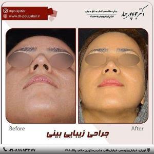 جراحی بینی 81