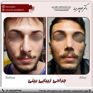 جراحی بینی 89