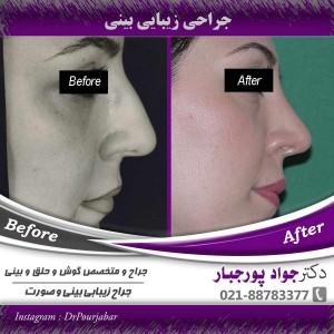 جراحی-بینی استخوانی