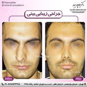 جراحی بینی 48