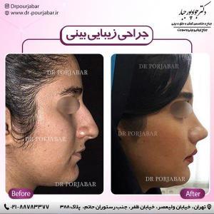 جراحی بینی 50 (1)