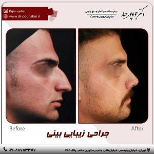 جراحی بینی 54