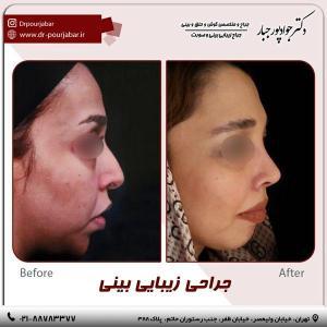 جراحی بینی 57