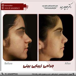 جراحی بینی 59